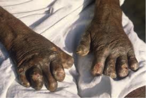 Leper's hands
